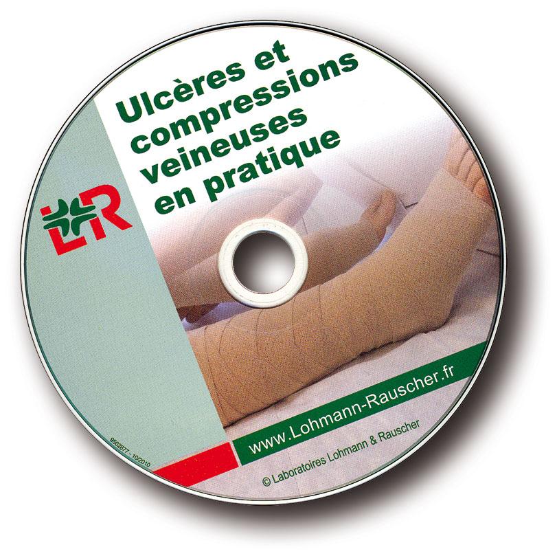 Lohmann&Rauscher CD compression